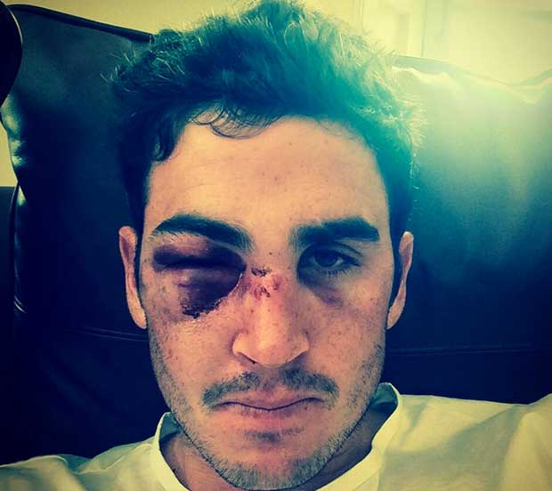 Horror injury for expat Saffa